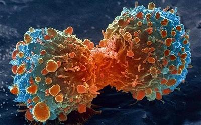癌症與順勢療法.